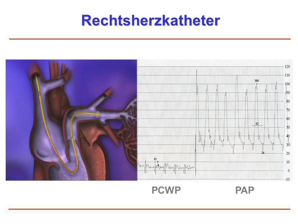Rechtsherzkatheter PCWPPAP Definition Pulmonale Hypertonie PAPm > 25 mmHg PAH: PCWP < 15 mmHg