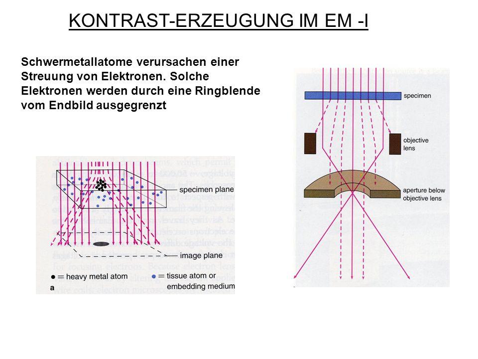 KONTRAST-ERZEUGUNG IM EM -I Schwermetallatome verursachen einer Streuung von Elektronen. Solche Elektronen werden durch eine Ringblende vom Endbild au