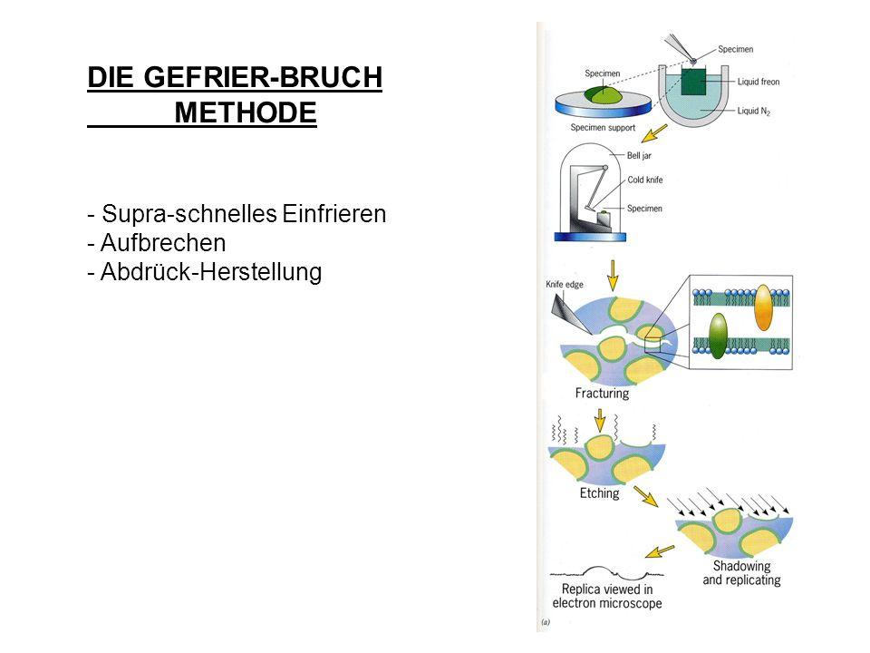 DIE GEFRIER-BRUCH METHODE - Supra-schnelles Einfrieren - Aufbrechen - Abdrück-Herstellung