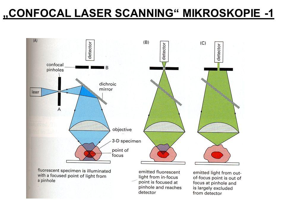 CONFOCAL LASER SCANNING MIKROSKOPIE -1