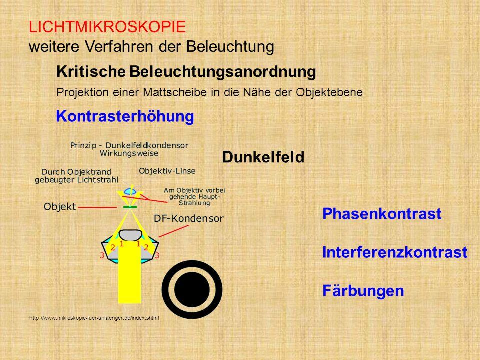 LICHTMIKROSKOPIE weitere Verfahren der Beleuchtung http://www.mikroskopie-fuer-anfaenger.de/index.shtml Dunkelfeld Kritische Beleuchtungsanordnung Pro