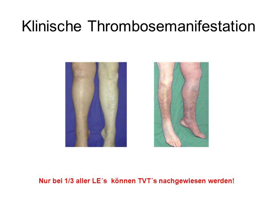 Klinische Thrombosemanifestation Nur bei 1/3 aller LE´s können TVT´s nachgewiesen werden!