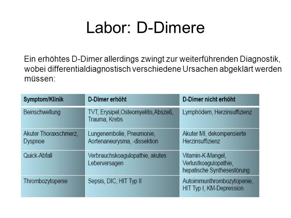 Labor: D-Dimere Ein erhöhtes D-Dimer allerdings zwingt zur weiterführenden Diagnostik, wobei differentialdiagnostisch verschiedene Ursachen abgeklärt werden müssen: