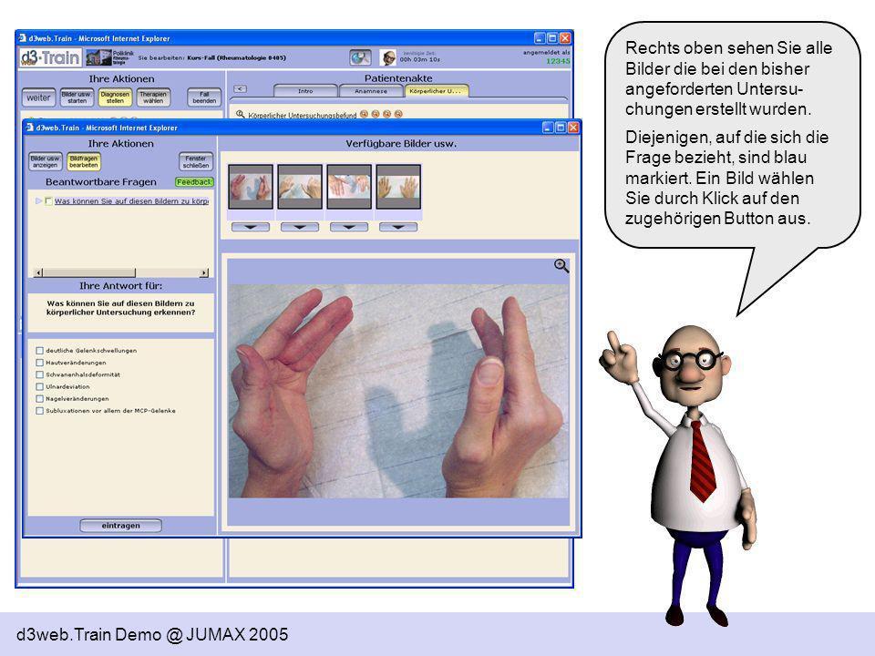 d3web.Train Demo @ JUMAX 2005 Da Sie nun alle aktuell möglichen Befunde erstellt und so viele Diagnosen so eingestuft wie erwartet angegeben haben, haben Sie diesen Abschnitt des Falles fertig bearbeitet – Therapien können Sie jetzt noch nicht wählen, der entsprechende Button ist deswegen auch ausgegraut.