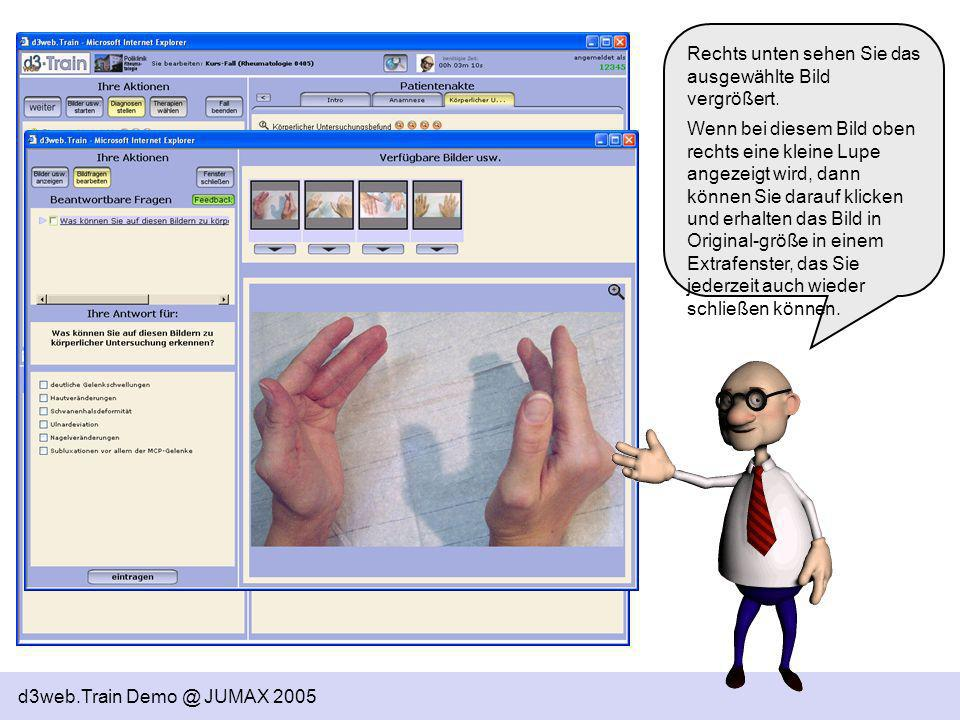 d3web.Train Demo @ JUMAX 2005 Links in der Mitte wird Ihnen die aktive Frage gestellt – darunter sehen Sie die zur Auswahl stehenden Antworten.