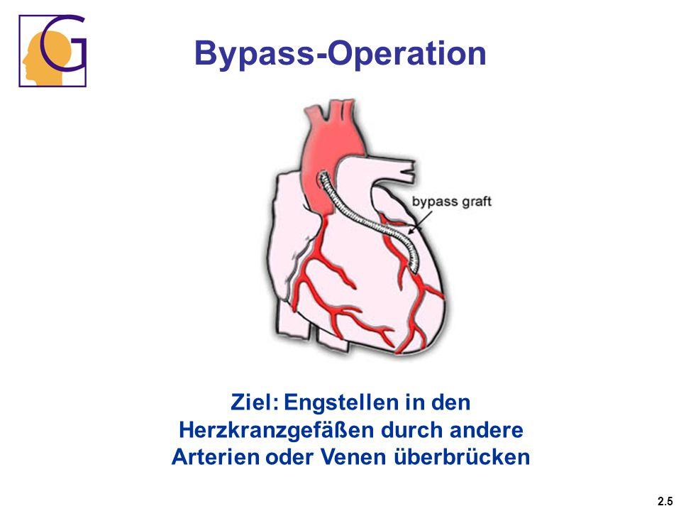 Bypass-Operation Ziel: Engstellen in den Herzkranzgefäßen durch andere Arterien oder Venen überbrücken 2.5
