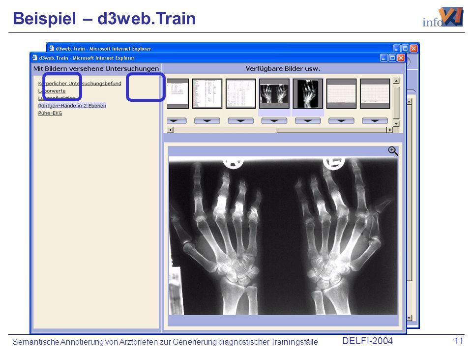 DELFI-200411 Semantische Annotierung von Arztbriefen zur Generierung diagnostischer Trainingsfälle Beispiel – d3web.Train