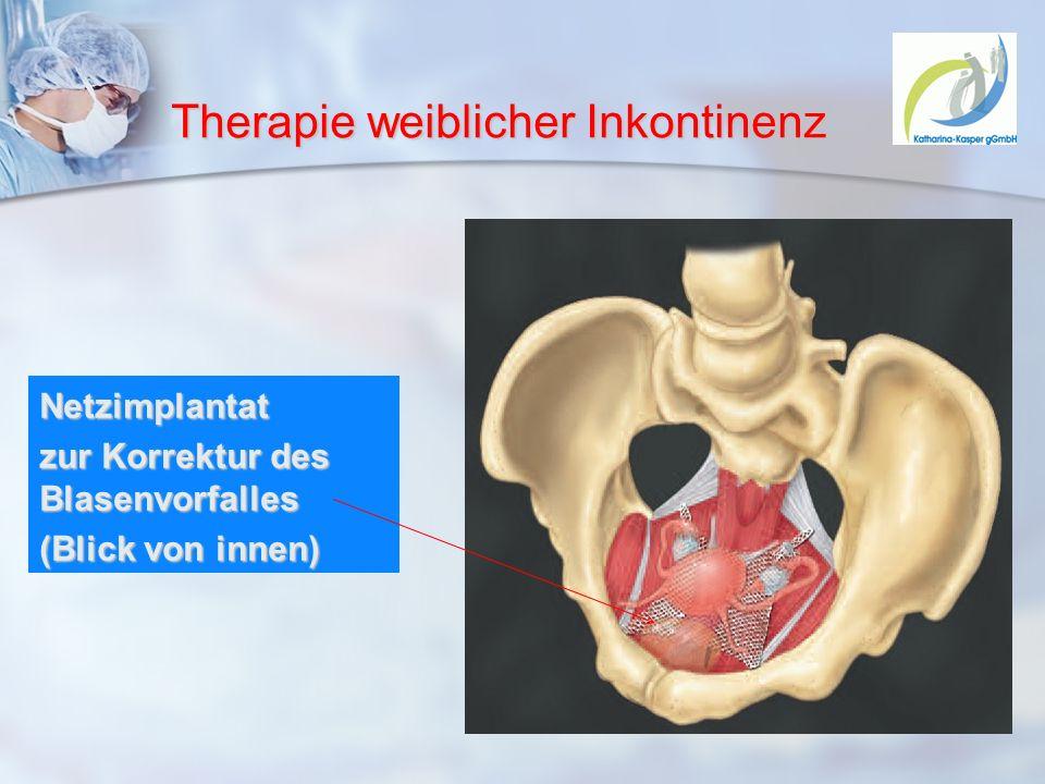 Therapie weiblicher Inkontinenz Netzimplantat zur Korrektur des Blasenvorfalles (Blick von innen)