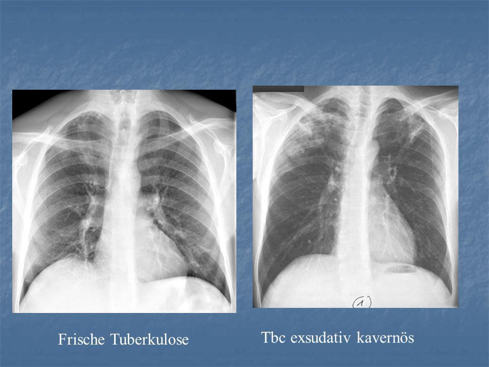 Frische Tuberkulose Tbc exsudativ kavernös