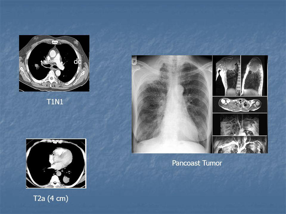 T1N1 T2a (4 cm) dc Pancoast Tumor