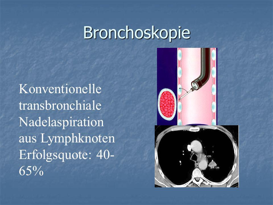 Bronchoskopie Konventionelle transbronchiale Nadelaspiration aus Lymphknoten Erfolgsquote: 40- 65%