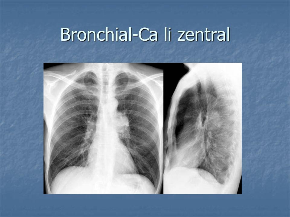 Bronchial-Ca li zentral
