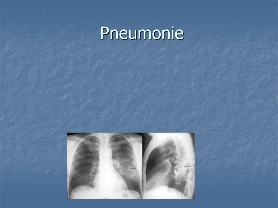 Pneumonie Pneumonie