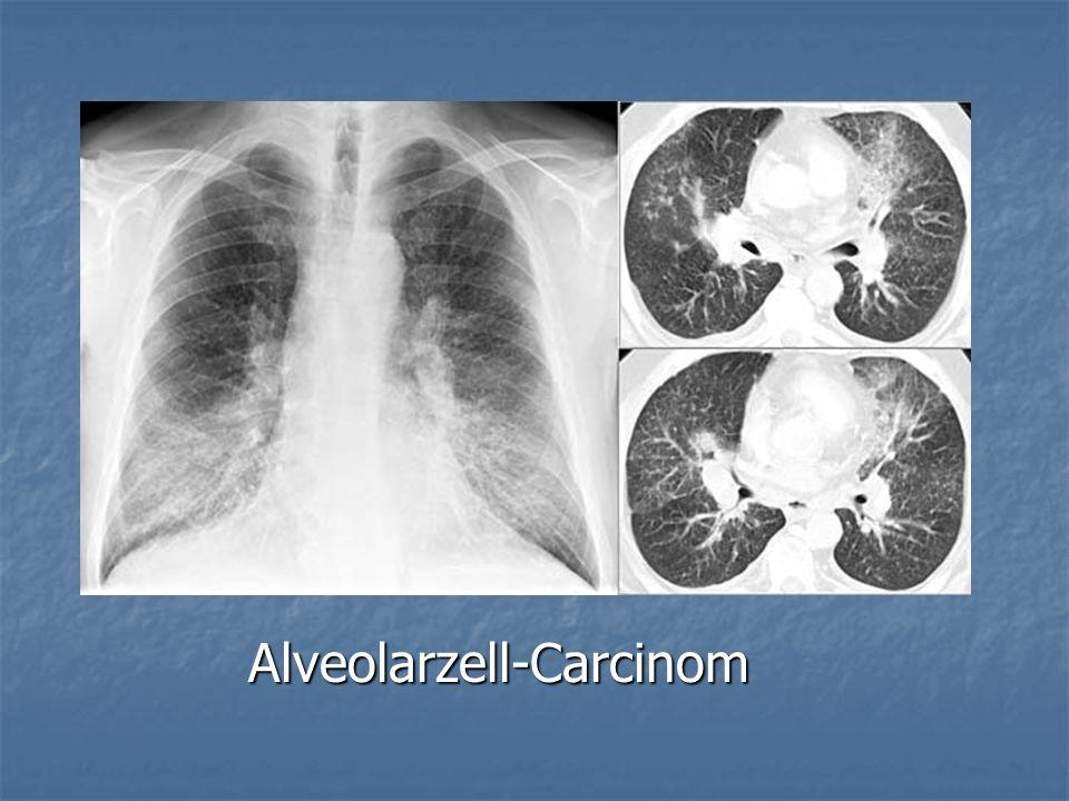 Alveolarzell-Carcinom