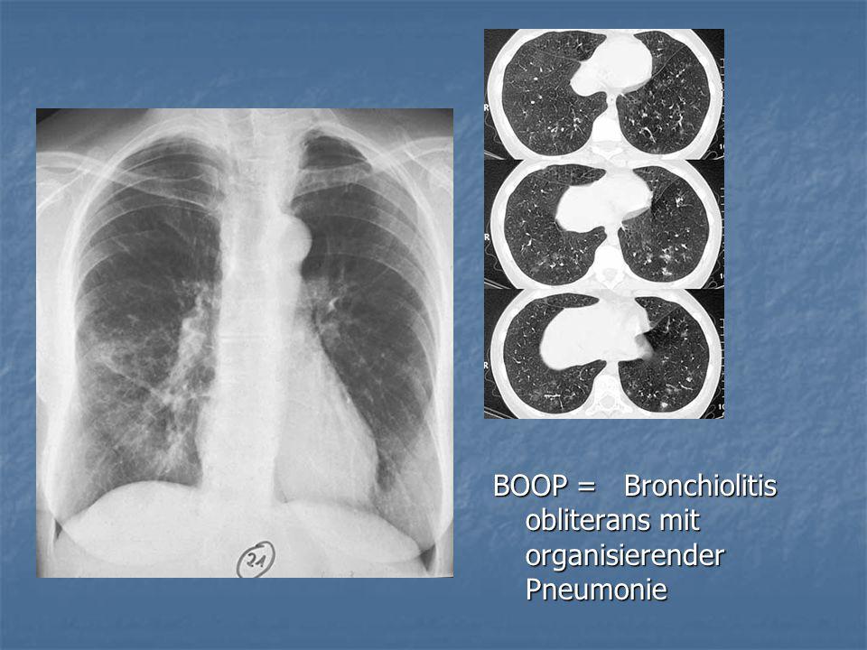 BOOP = Bronchiolitis obliterans mit organisierender Pneumonie