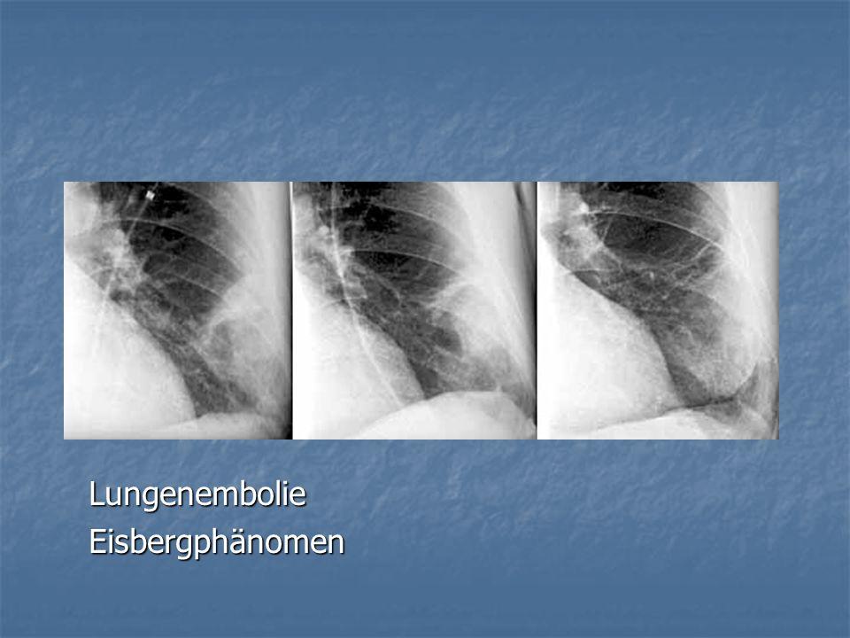 LungenembolieEisbergphänomen