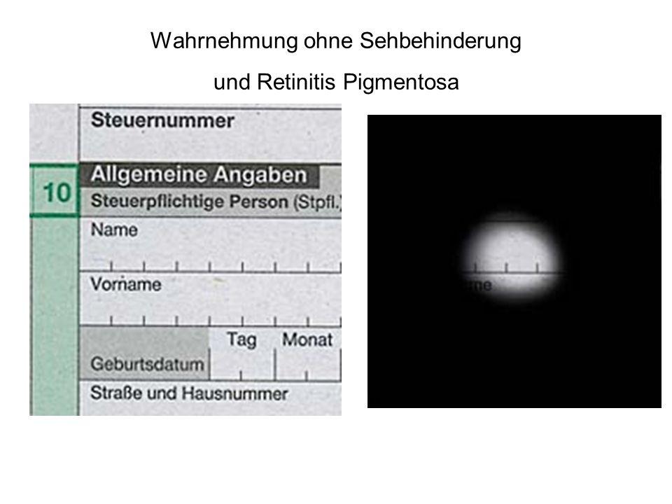 Wahrnehmung ohne Sehbehinderung und Retinitis Pigmentosa