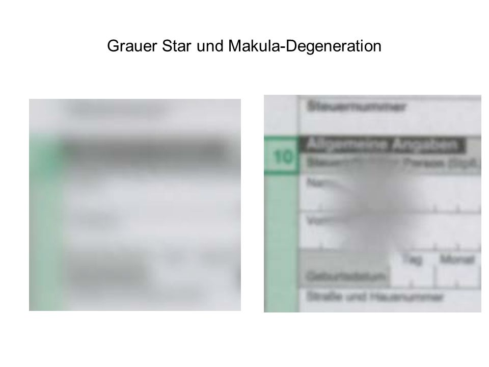 Grauer Star und Makula-Degeneration