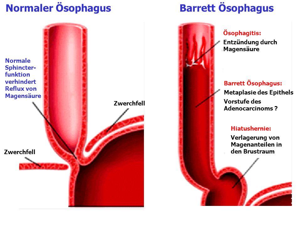 Normaler ÖsophagusBarrett Ösophagus Normale Sphincter- funktion verhindert Reflux von Magensäure Zwerchfell Ösophagitis: Entzündung durch Magensäure B