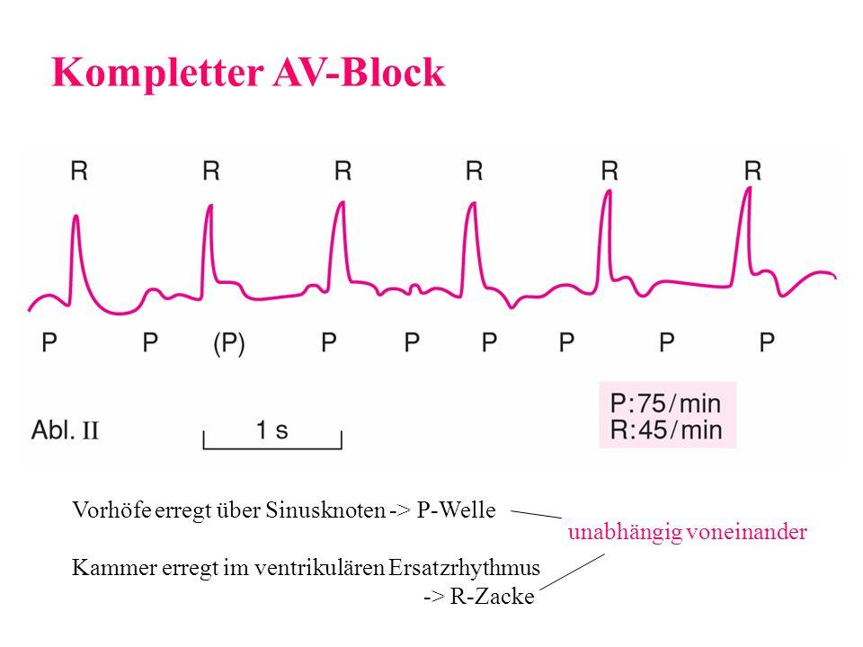 Kompletter AV-Block Vorhöfe erregt über Sinusknoten -> P-Welle Kammer erregt im ventrikulären Ersatzrhythmus -> R-Zacke unabhängig voneinander