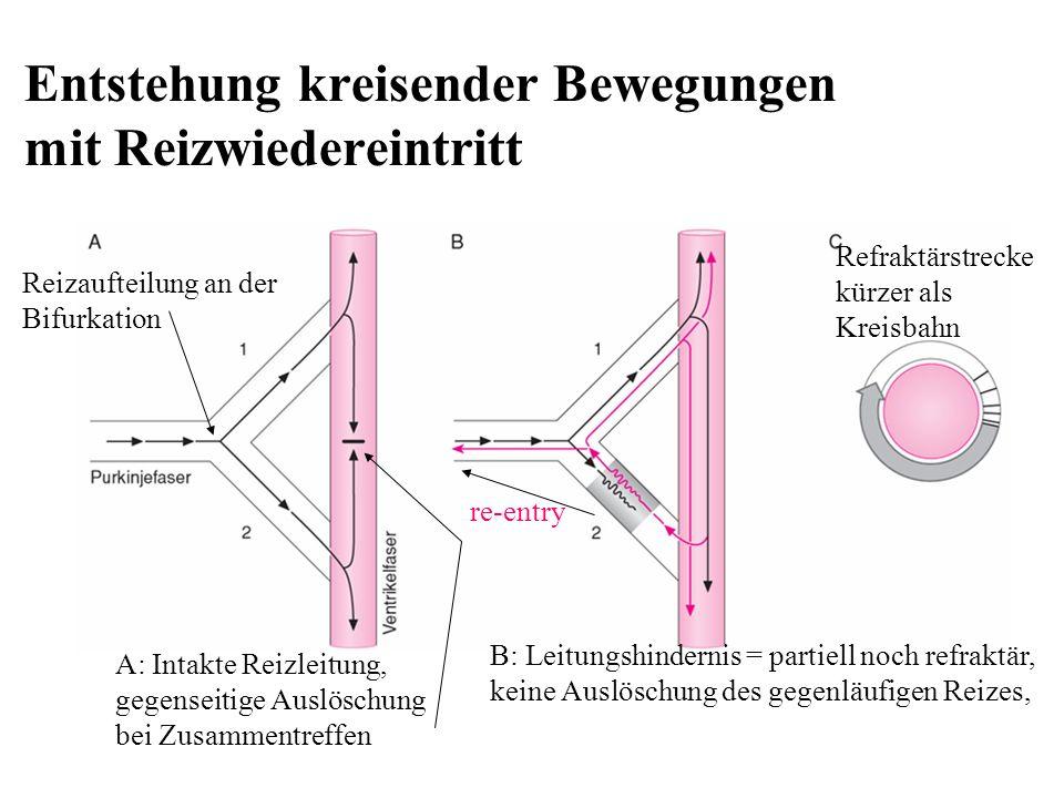 Entstehung kreisender Bewegungen mit Reizwiedereintritt A: Intakte Reizleitung, gegenseitige Auslöschung bei Zusammentreffen Reizaufteilung an der Bif