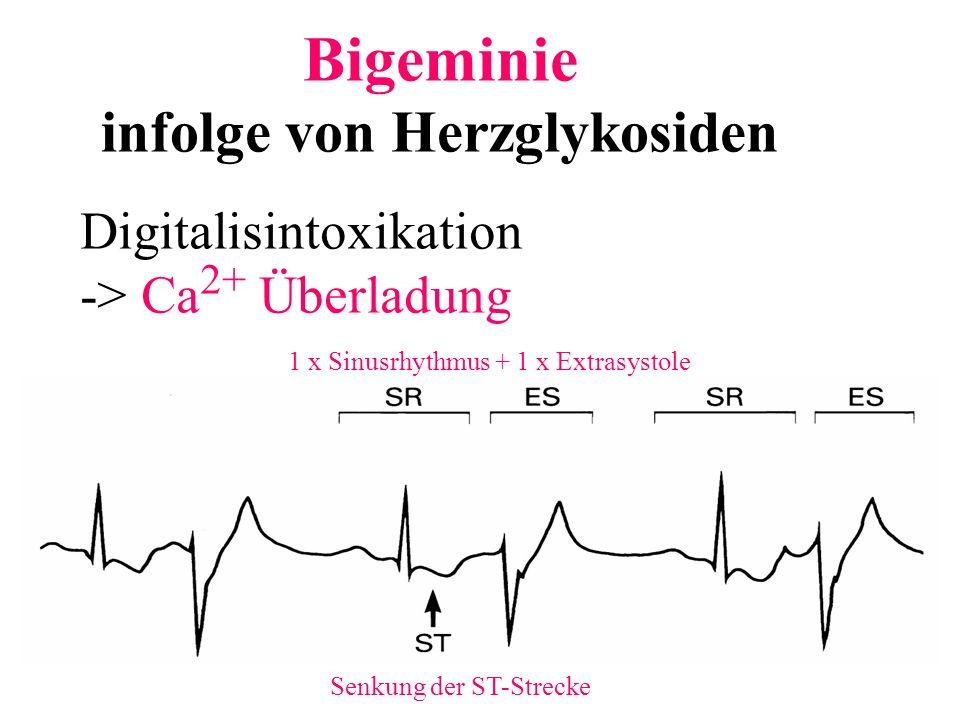 Bigeminie infolge von Herzglykosiden 1 x Sinusrhythmus + 1 x Extrasystole Senkung der ST-Strecke Digitalisintoxikation -> Ca 2+ Überladung