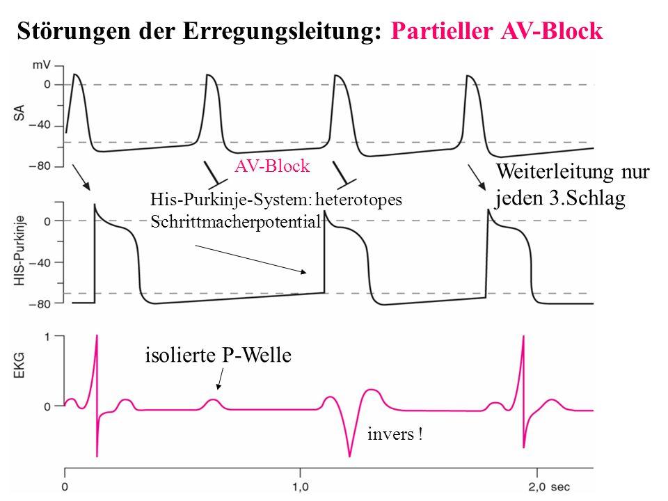 Störungen der Erregungsleitung: Partieller AV-Block isolierte P-Welle Weiterleitung nur jeden 3.Schlag His-Purkinje-System: heterotopes Schrittmacherp