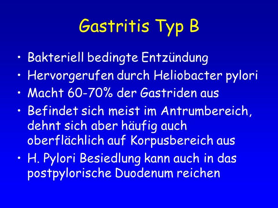 Gastritis Typ B Bakteriell bedingte Entzündung Hervorgerufen durch Heliobacter pylori Macht 60-70% der Gastriden aus Befindet sich meist im Antrumbere