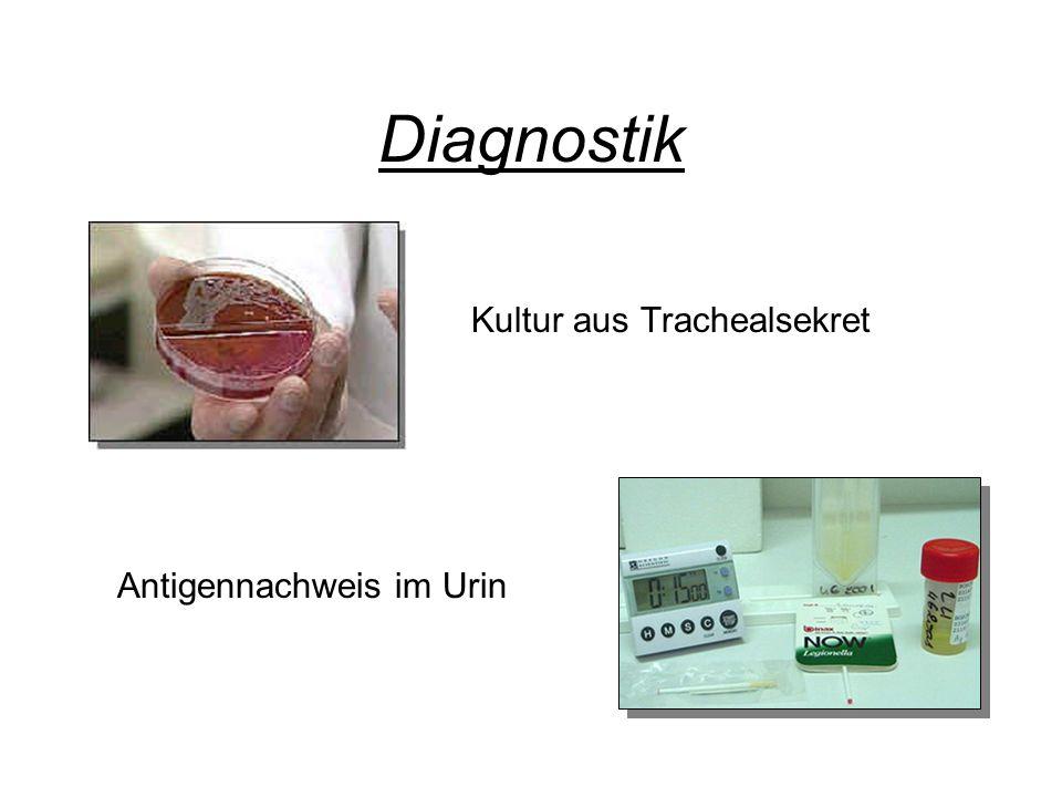 Diagnostik Kultur aus Trachealsekret Antigennachweis im Urin