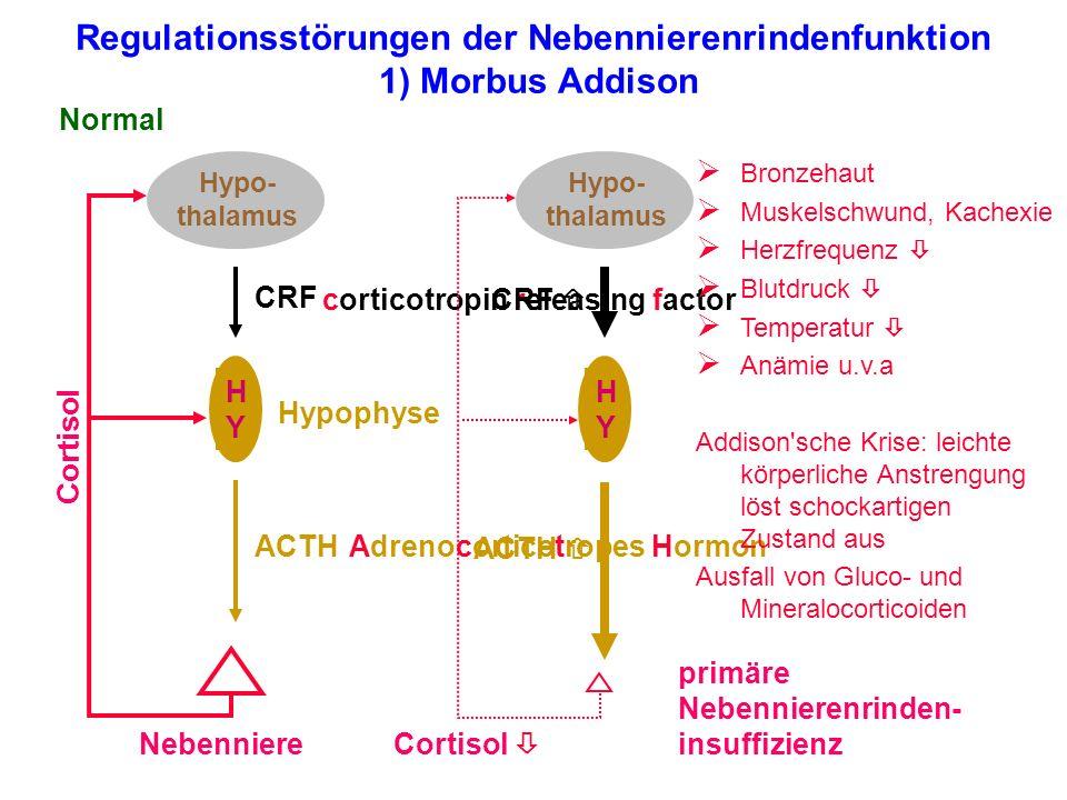 Regulationsstörungen der Nebennierenrindenfunktion 1) Morbus Addison Hypo- thalamus HYHY Nebenniere Normal Cortisol ACTH CRF corticotropin releasing f