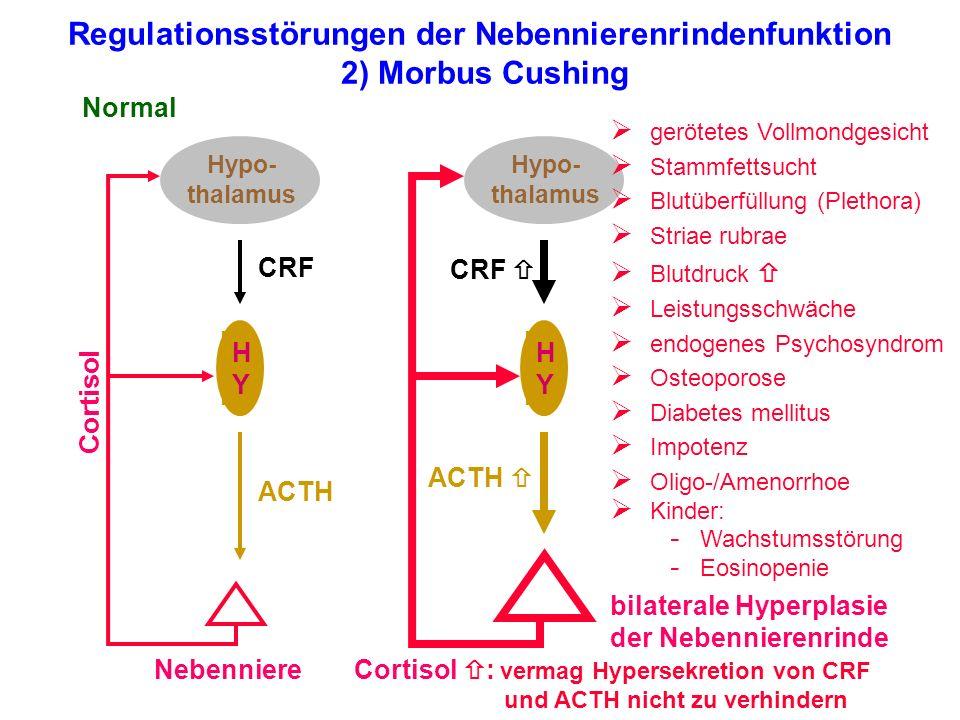 Regulationsstörungen der Nebennierenrindenfunktion 2) Morbus Cushing Hypo- thalamus HYHY Nebenniere Normal Cortisol ACTH CRF Hypo- thalamus HYHY bilat