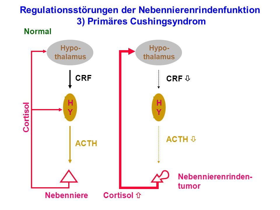Regulationsstörungen der Nebennierenrindenfunktion 3) Primäres Cushingsyndrom Hypo- thalamus HYHY Nebenniere Normal Cortisol ACTH CRF Hypo- thalamus H
