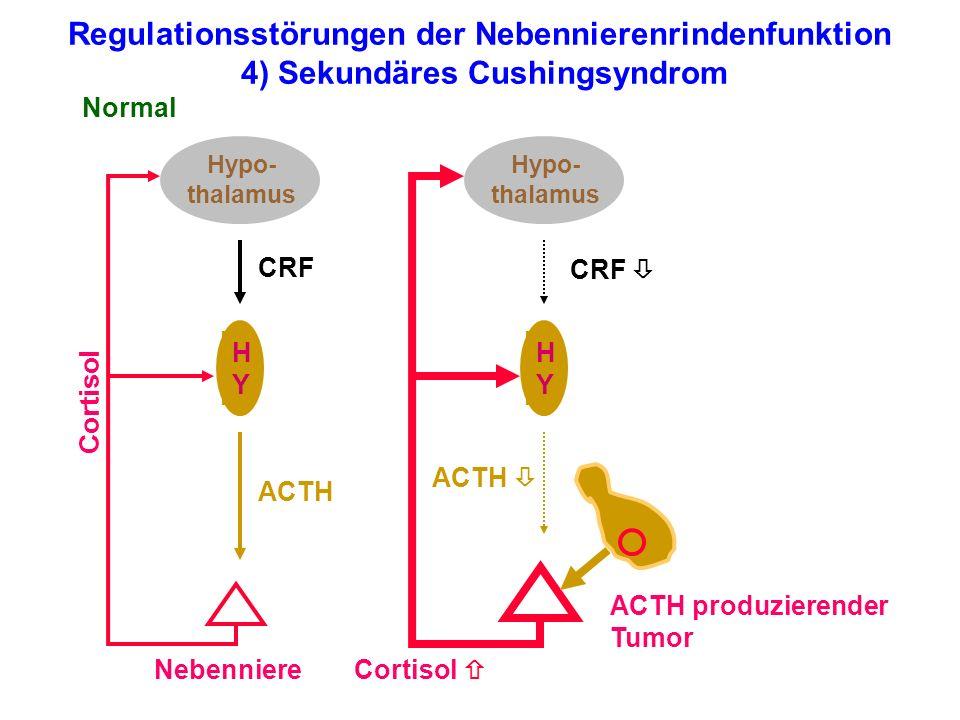 Regulationsstörungen der Nebennierenrindenfunktion 4) Sekundäres Cushingsyndrom Hypo- thalamus HYHY Nebenniere Normal Cortisol ACTH CRF Hypo- thalamus