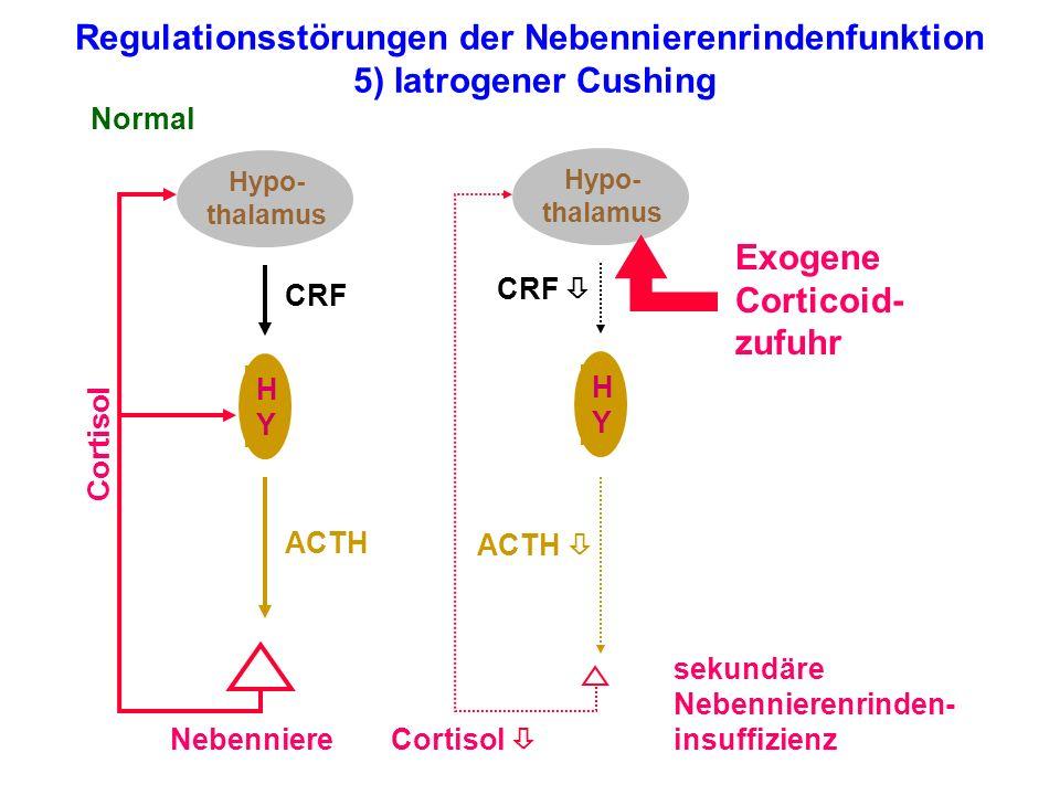 Regulationsstörungen der Nebennierenrindenfunktion 5) Iatrogener Cushing Hypo- thalamus HYHY Nebenniere Normal Cortisol ACTH CRF Hypo- thalamus HYHY s