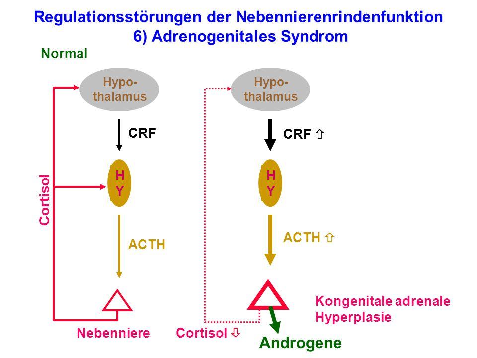Regulationsstörungen der Nebennierenrindenfunktion 6) Adrenogenitales Syndrom Hypo- thalamus HYHY Nebenniere Normal Cortisol ACTH CRF Hypo- thalamus H