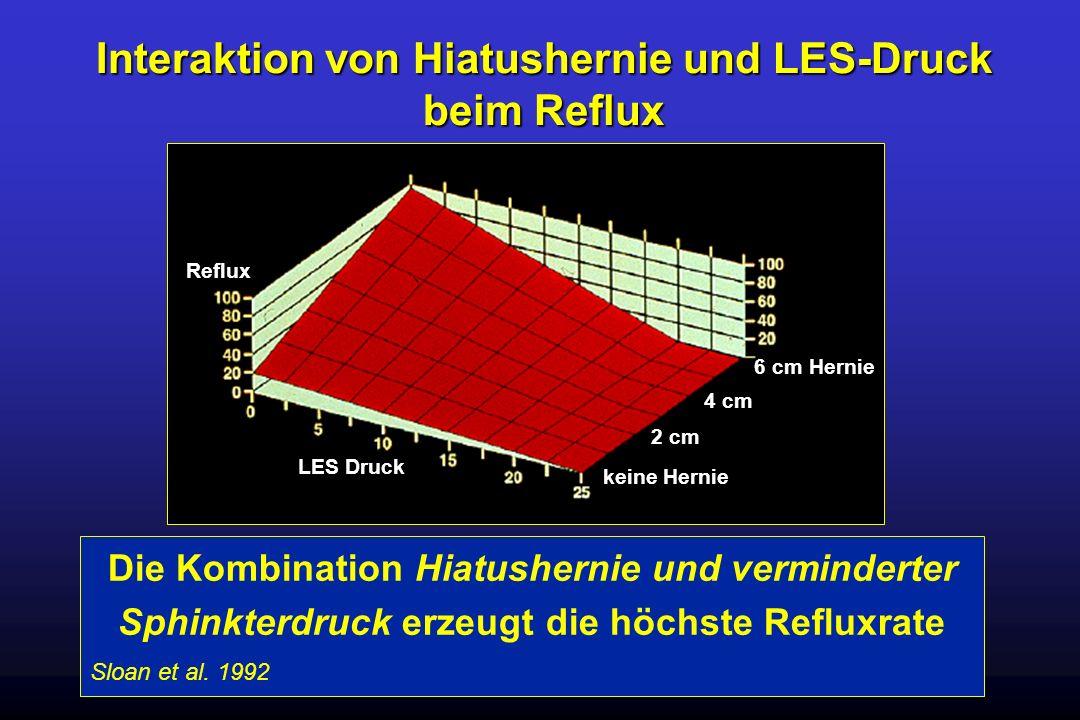 Interaktion von Hiatushernie und LES-Druck beim Reflux Magen LES Druck keine Hernie 2 cm 4 cm 6 cm Hernie Reflux Die Kombination Hiatushernie und verm