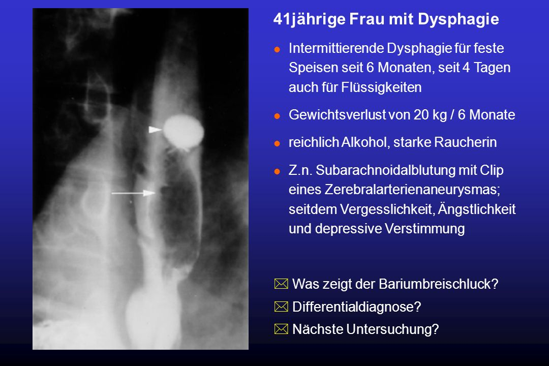 41jährige Frau mit Dysphagie l Intermittierende Dysphagie für feste Speisen seit 6 Monaten, seit 4 Tagen auch für Flüssigkeiten l Gewichtsverlust von