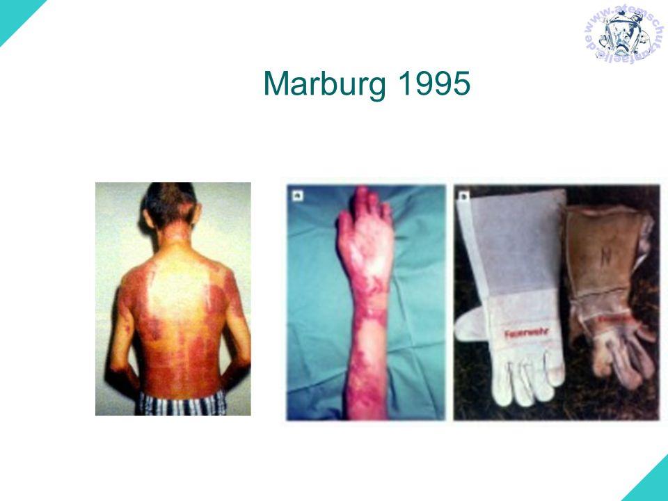 Marburg 1995
