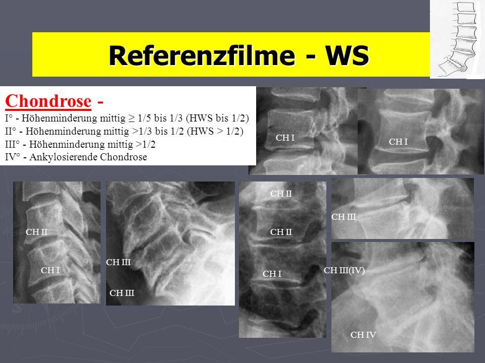 Referenzfilme - WS CH IV CH III CH III(IV) CH II CH I Chondrose - I° - Höhenminderung mittig 1/5 bis 1/3 (HWS bis 1/2) II° - Höhenminderung mittig >1/3 bis 1/2 (HWS > 1/2) III° - Höhenminderung mittig >1/2 IV° - Ankylosierende Chondrose