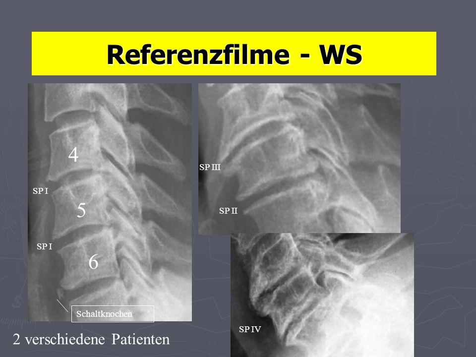 4 5 6 Referenzfilme - WS 2 verschiedene Patienten SP III SP II SP I Schaltknochen SP IV