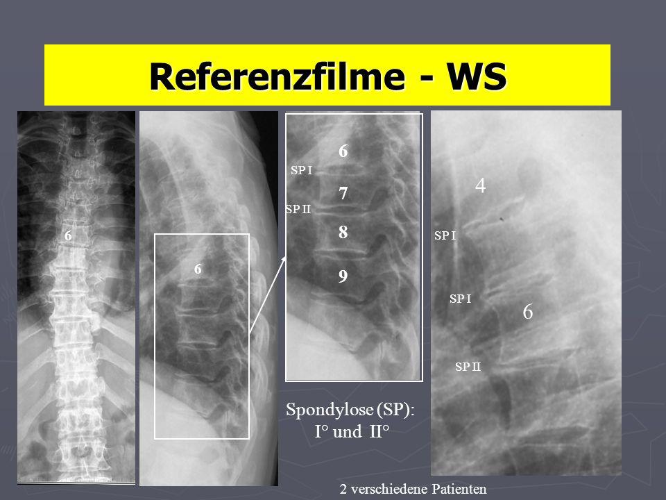 Referenzfilme - WS Spondylose (SP): I° und II° 6 6 6 7 8 9 6 4 2 verschiedene Patienten SP I SP II SP I