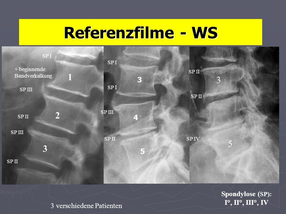 Referenzfilme - WS Spondylose ( SP): I°, II°, III°, IV 1 2 3 3 4 5 5 3 3 verschiedene Patienten SP I SP II SP III SP IV SP III SP II SP I SP II SP I + beginnende Bandverkalkung