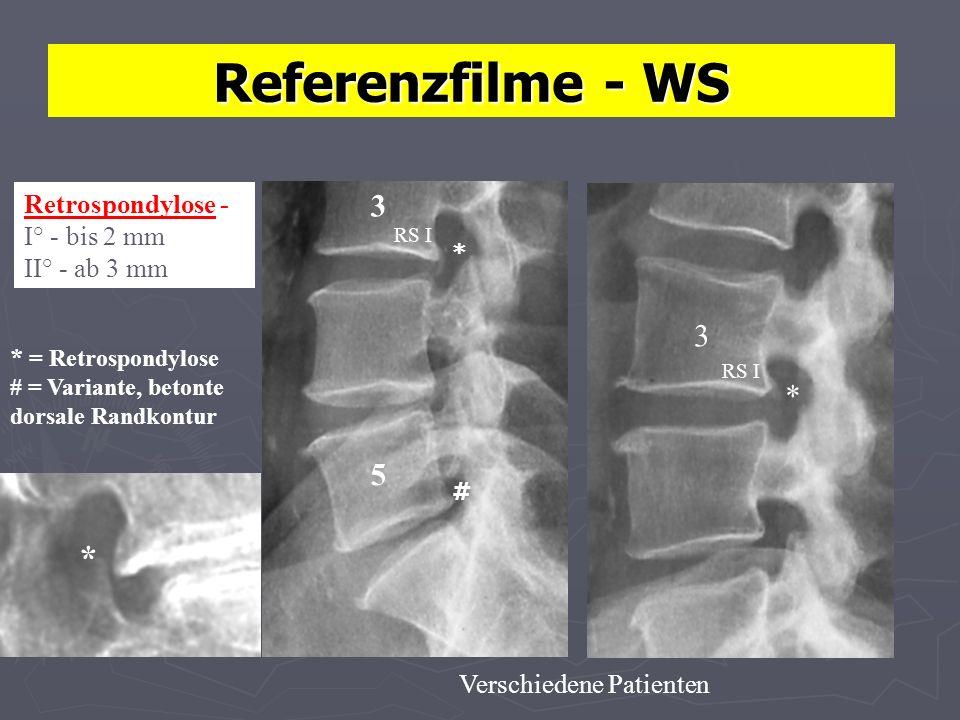 Referenzfilme - WS Retrospondylose - I° - bis 2 mm II° - ab 3 mm 5 3 * # 3 * * = Retrospondylose # = Variante, betonte dorsale Randkontur Verschiedene Patienten * RS I