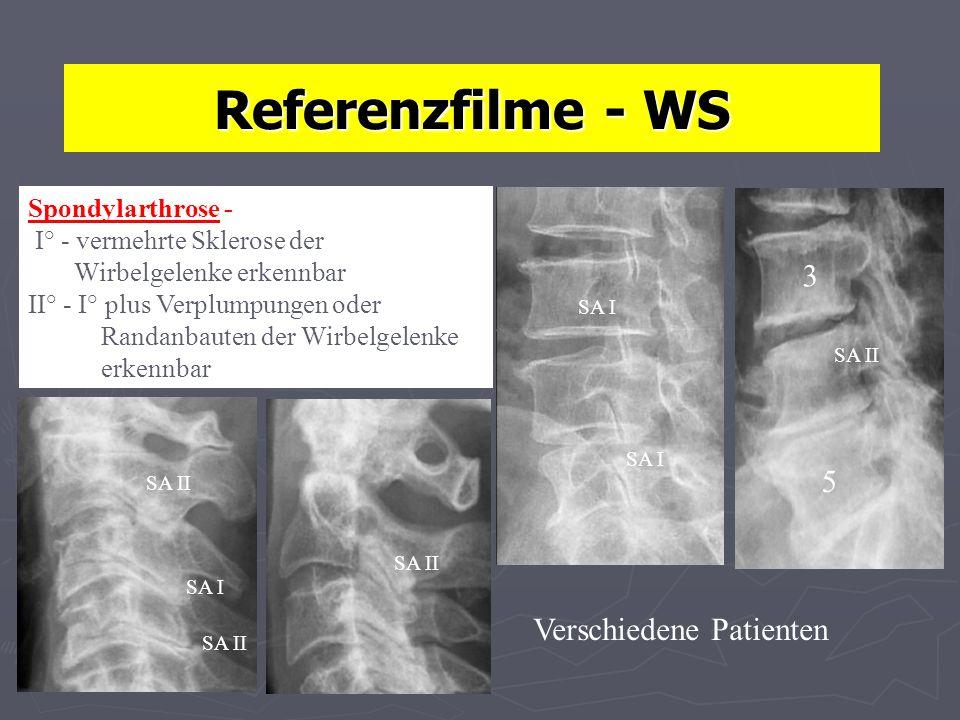 Referenzfilme - WS 5 3 Verschiedene Patienten SA I SA II SA I Spondylarthrose - I° - vermehrte Sklerose der Wirbelgelenke erkennbar II° - I° plus Verplumpungen oder Randanbauten der Wirbelgelenke erkennbar