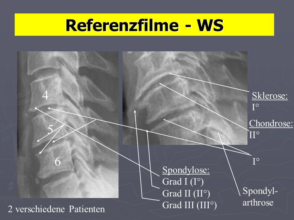 4 5 6 Referenzfilme - WS Sklerose: I° Chondrose: II° I° Spondylose: Grad I (I°) Grad II (II°) Grad III (III°) Spondyl- arthrose 2 verschiedene Patienten