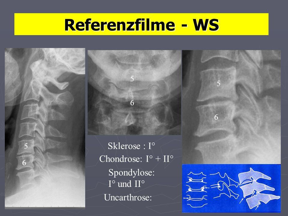 Referenzfilme - WS Sklerose : I° Chondrose: I° + II° Spondylose: I° und II° 5 5 6 6 6 5 Uncarthrose: