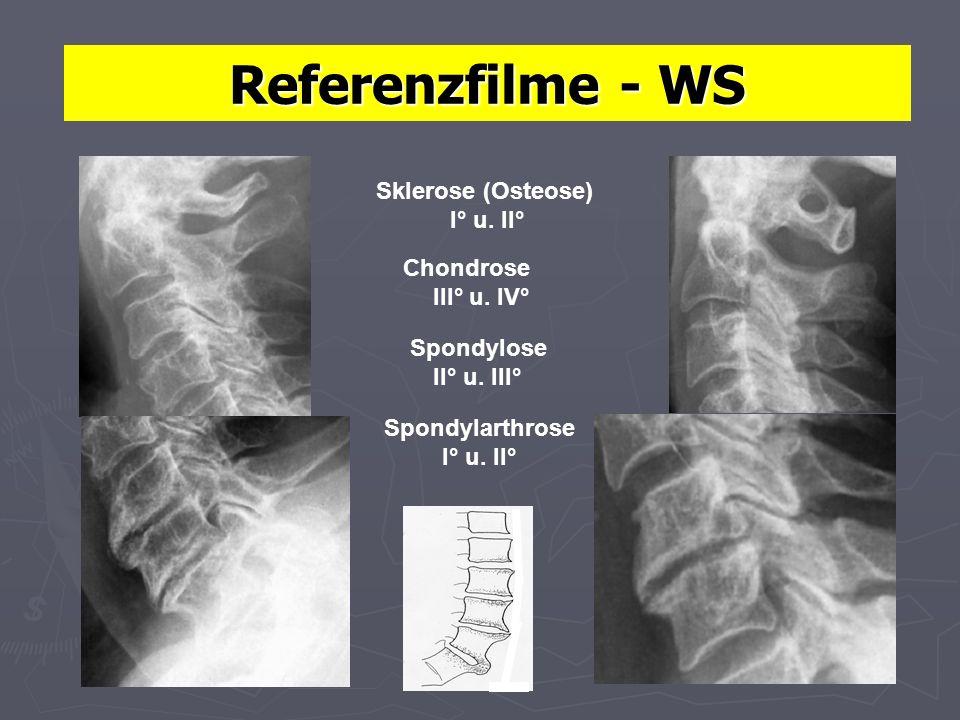 Referenzfilme - WS Spondylarthrose I° u. II° Sklerose (Osteose) I° u. II° Chondrose III° u. IV° Spondylose II° u. III°