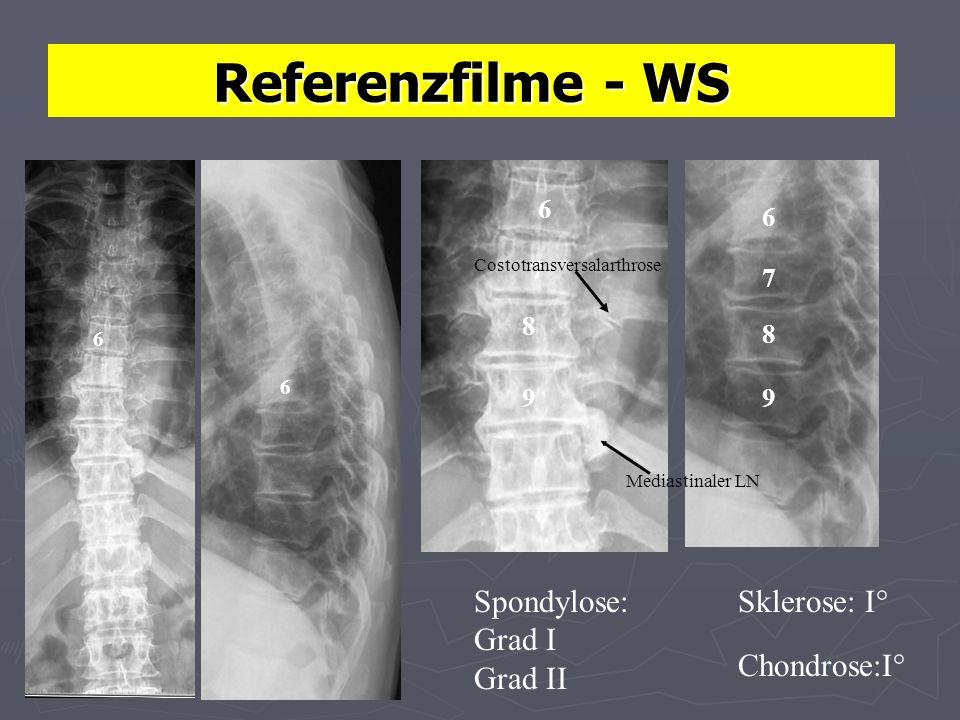 Referenzfilme - WS Sklerose: I° Chondrose:I° Spondylose: Grad I Grad II 6 6 6 6 7 8 9 7 8 9 Costotransversalarthrose Mediastinaler LN