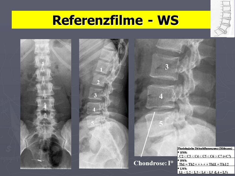 Referenzfilme - WS 1 1 Chondrose: I° 3 4 5 2 4 3 4 5