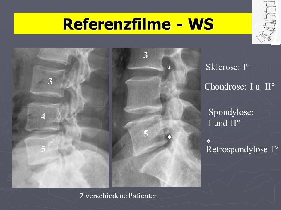 Referenzfilme - WS Sklerose: I° Chondrose: I u.